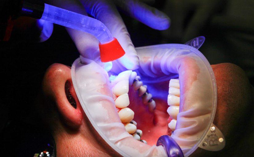 Zły sposób odżywiania się to większe niedostatki w zębach natomiast także ich brak